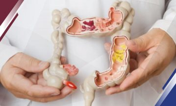 Especialista Intestino Irritable